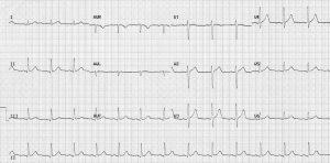 Normal Sinus Rhythm ECG