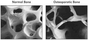 Comparison of normal and osteoporotic bone